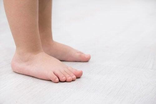 Pieds plats : causes, symptômes et traitements