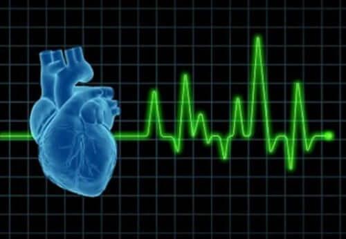 Un cardiogramme mettant en évidence une tachycardie et un oedème pulmonaire