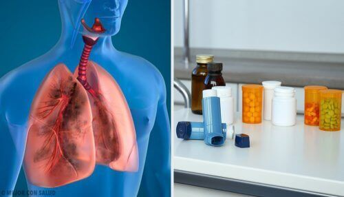 L'aérosolthérapie pour traiter les maladies respiratoires