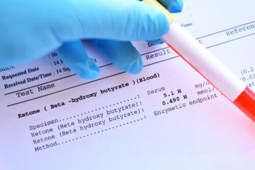 Les résultats d'une analyse de sang