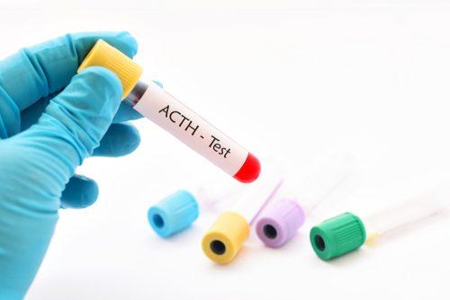 Une analyse médicale de l'ACTH