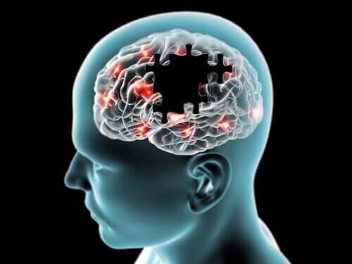 Le sucre et ses effets sur le cerveau