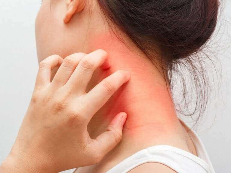 Une femme se grattant le cou à cause de la dermatite atopique