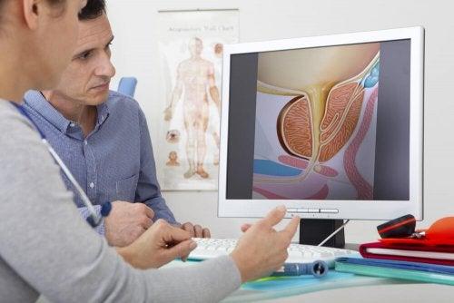 Un examen de la prostate et de l'hémospermie