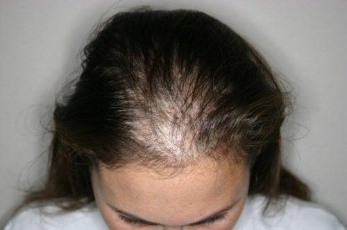 Un cas d'alopécie areata