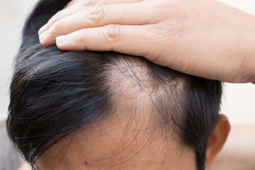 Une personne souffrant d'alopécie areata