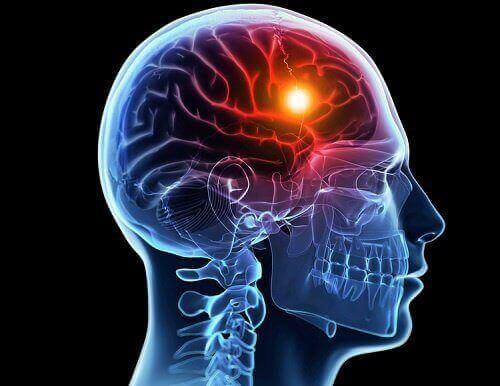 La représentation schématique de l'hypoxie cérébrale