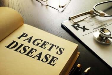 Qu'est-ce que la maladie de Paget ?