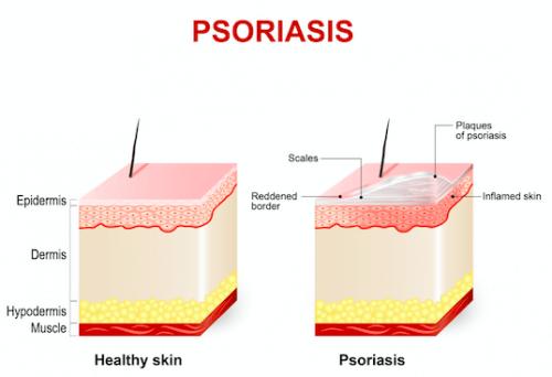 L'acitrétine peut traiter les affections cutanées telles que le psoriasis
