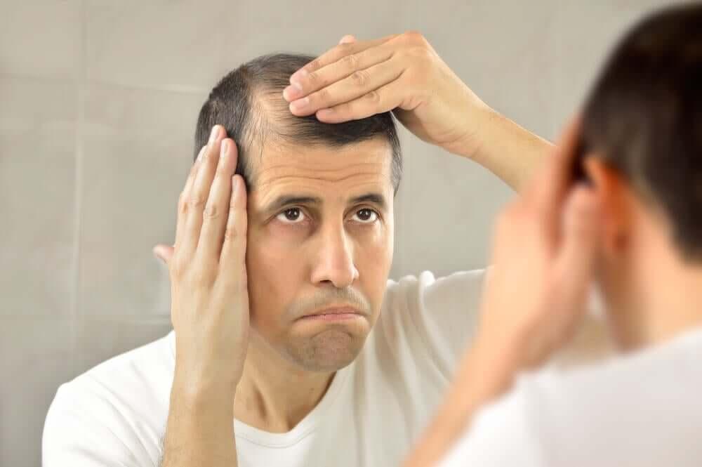 L'alopécie androgénique touche les hommes