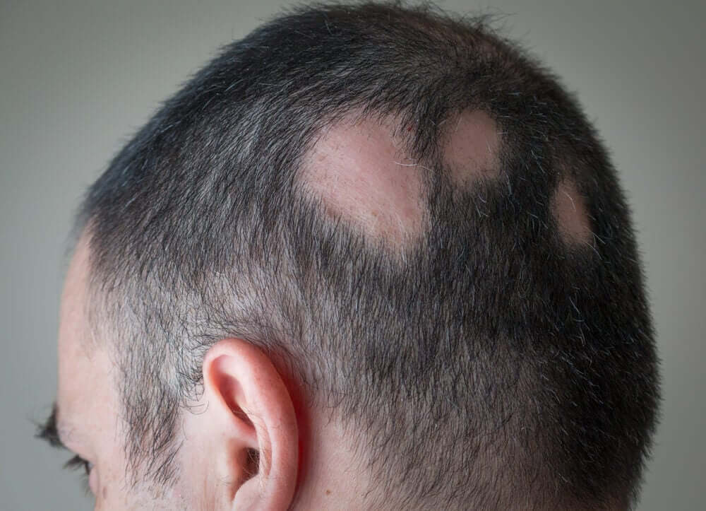 Un crâne qui souffre d'alopécie androgénique