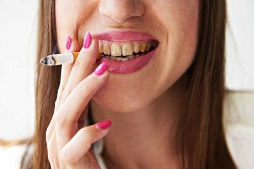 Les dommages du tabac sur les dents