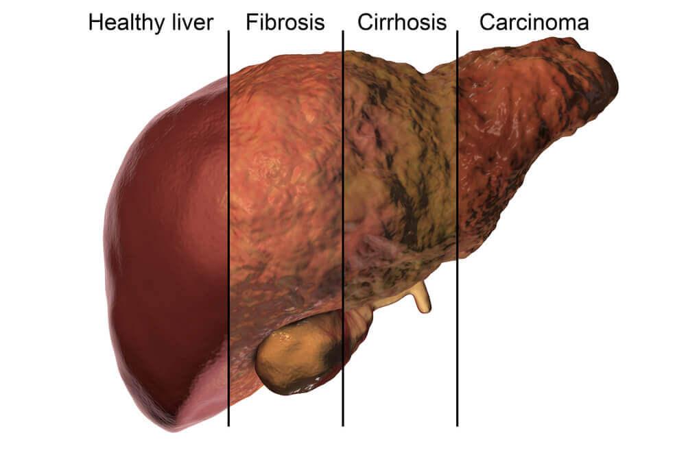 Qu'est-ce que le métabolisme hépatique ?