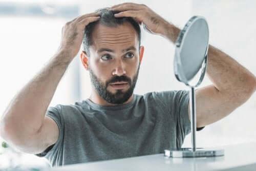 Alopécie androgénique : symptômes, causes et traitement