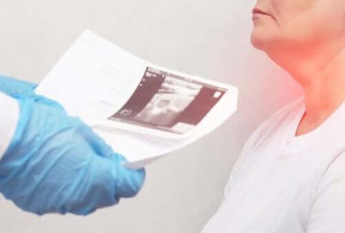 Nodules thyroïdiens : symptômes et causes