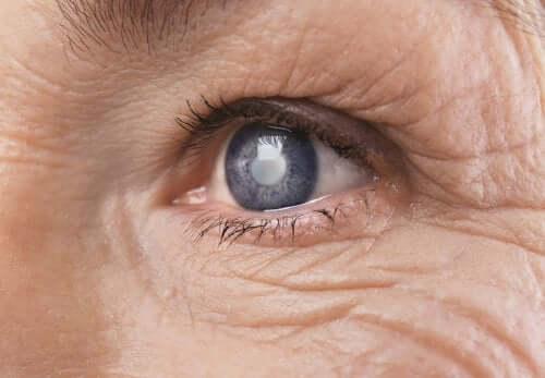 Les conséquences de l'hyperglycémie sur la vue