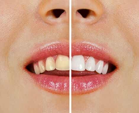 Produits naturels pour blanchir les dents