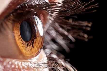 Un oeil après une greffe de la cornée