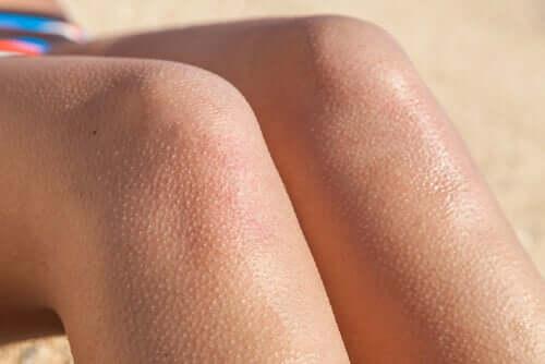 La piloérection sur les jambes