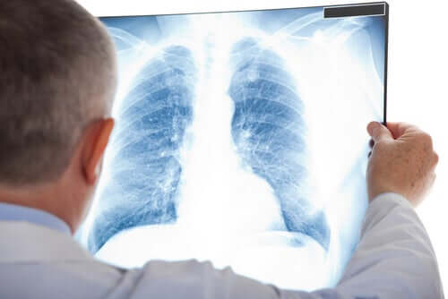 La radiographie d'un poumon pour repérer un nodule pulmonaire