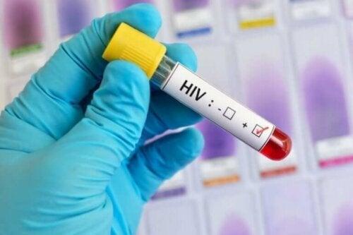 Les analyses à réaliser pour la lutte contre le sida