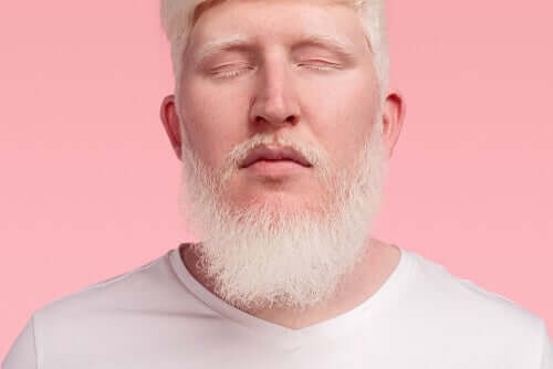 L'albinisme oculo-cutané