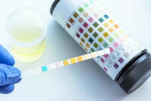 Que détecte une analyse d'urine ?