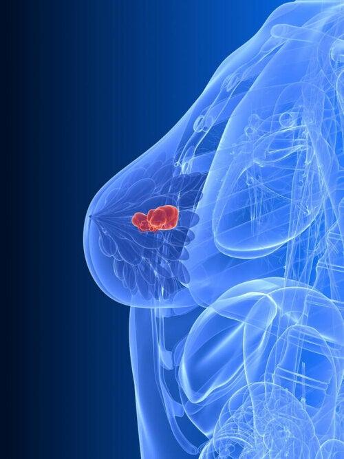Un schéma du cancer du sein