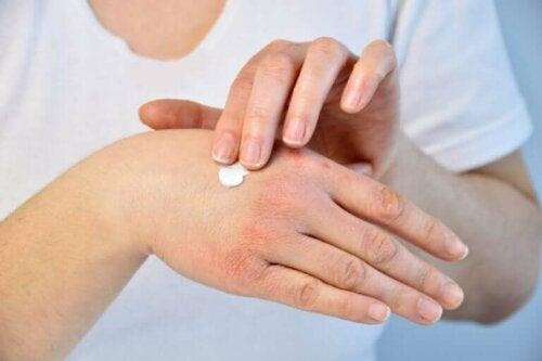 Mettre de la crème sur les mains gercées par le froid