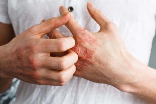 Des mains touchées par l'eczéma sévère