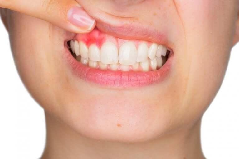 Les bains de bouche peuvent apaiser les gencives enflammées