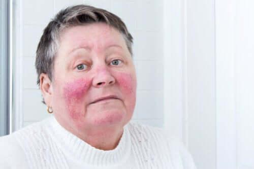 Causes et symptômes de la rosacée