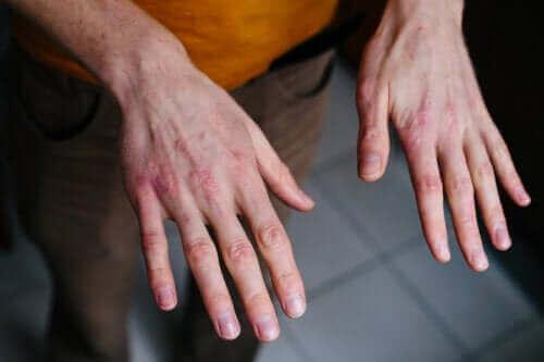 Mains gercées par le froid : comment les traiter ?
