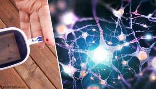 Neuropathie diabétique : les huiles essentielles