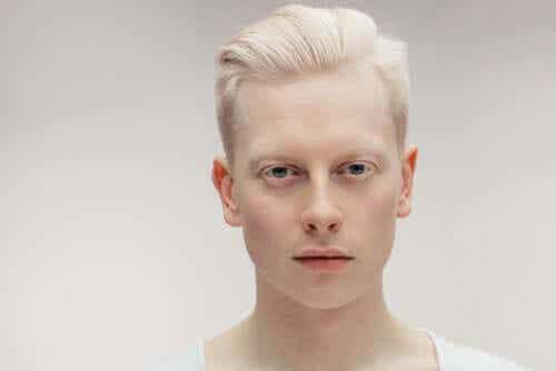 Tout ce que vous devez savoir sur l'albinisme