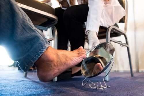Le pied d'une personne atteinte de neuropathie diabétique