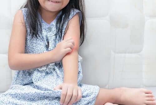 Le psoriasis chez les enfants: comment l'aborder?