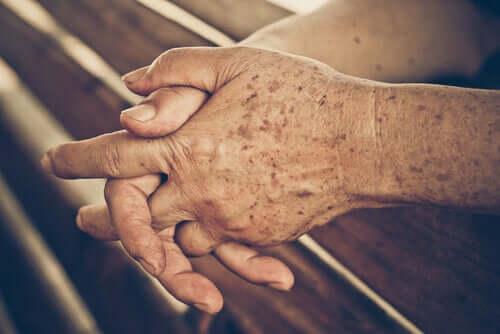 Les personnes âgées ont parfois des taches sur la peau