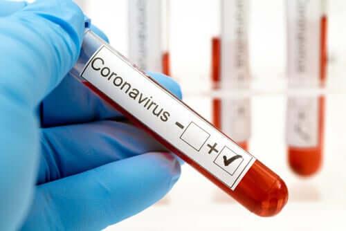 Une analyse de sang pour détecter le coronavirus