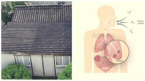 L'asbestose peut être provoquée par l'exposition à l'amiante dans les vieilles maisons