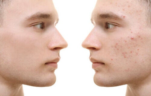 Curcuma contre l'acné: bénéfices et mode d'emploi