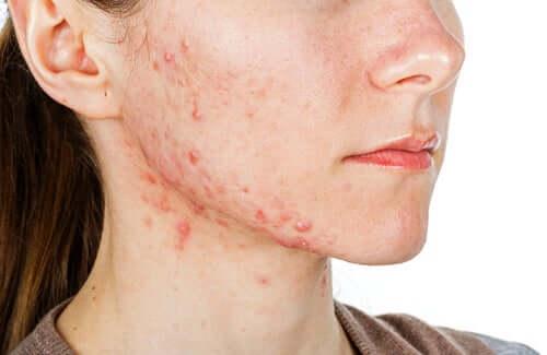 Une jeune fille souffrant d'acné nécessitant un traitement à base d'Isoface