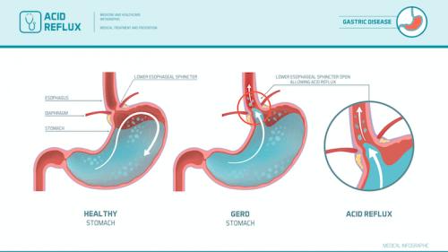 Le reflux gastro-oesophagien sous forme de schémas