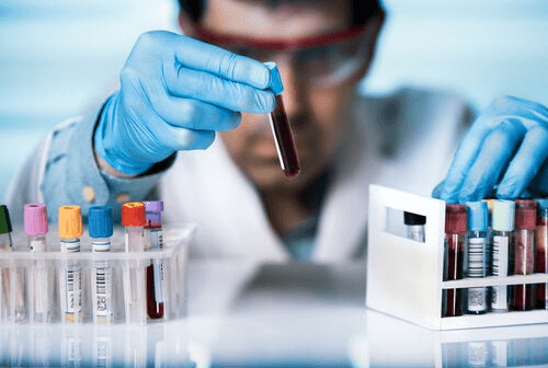 Un homme fait des tests en laboratoire sur le lien entre coronavirus et VIH