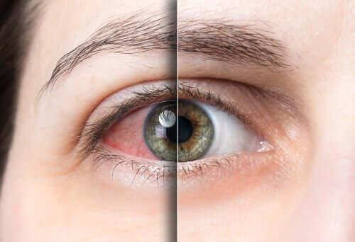 Un oeil touché par la conjonctivite et un oeil sain