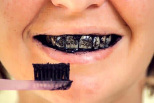 Les risques que présente le charbon actif pour la santé bucco-dentaire