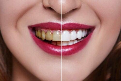 Le charbon actif ne rend pas les dents blanches