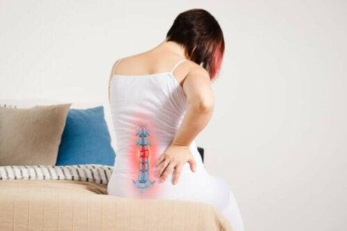 Une femme souffrant de radiculopathie