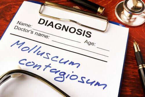 Le molluscum contagiosum, qu'est-ce que c'est ?