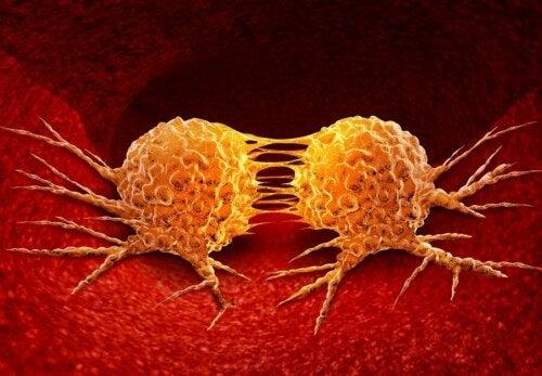 Le développement d'un cancer en cours